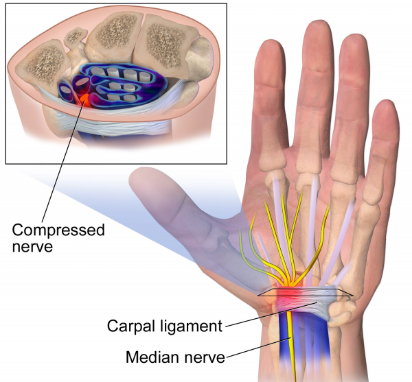 Carpal tunnel syndrome cts what you need to know