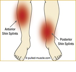 shin-splints-balance-orlando
